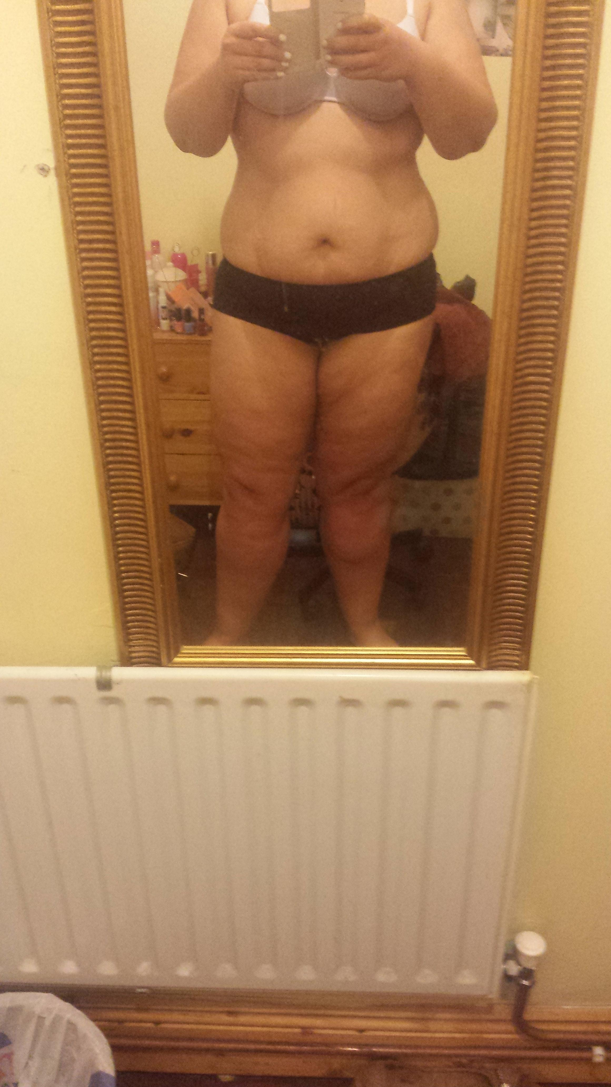 Any way to tone these v flabby legs (pics attached)-20140702_213643.jpg