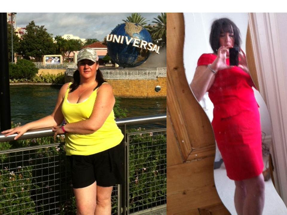 It works - I'm living proof a year later!-before-after.jpg
